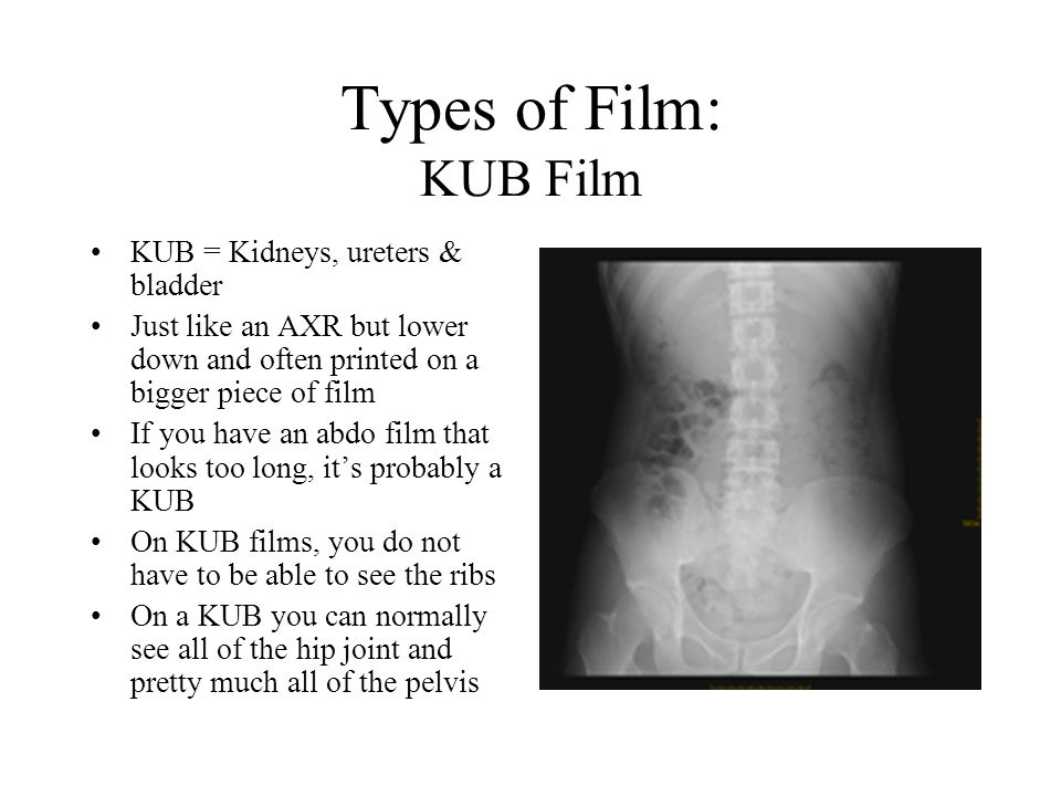 Types of Film: KUB Film KUB = Kidneys, ureters & bladder Just like an AXR but lower down and often printed on a bigger piece of film If you have an abdo film that looks too long, it's probably a KUB On KUB films, you do not have to be able to see the ribs On a KUB you can normally see all of the hip joint and pretty much all of the pelvis