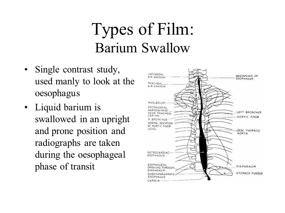Types of Film: Barium Swallow Single contrast study, used manly to look at the oesophagus Liquid barium is swallowed in an upright and prone position and radiographs are taken during the oesophageal phase of transit