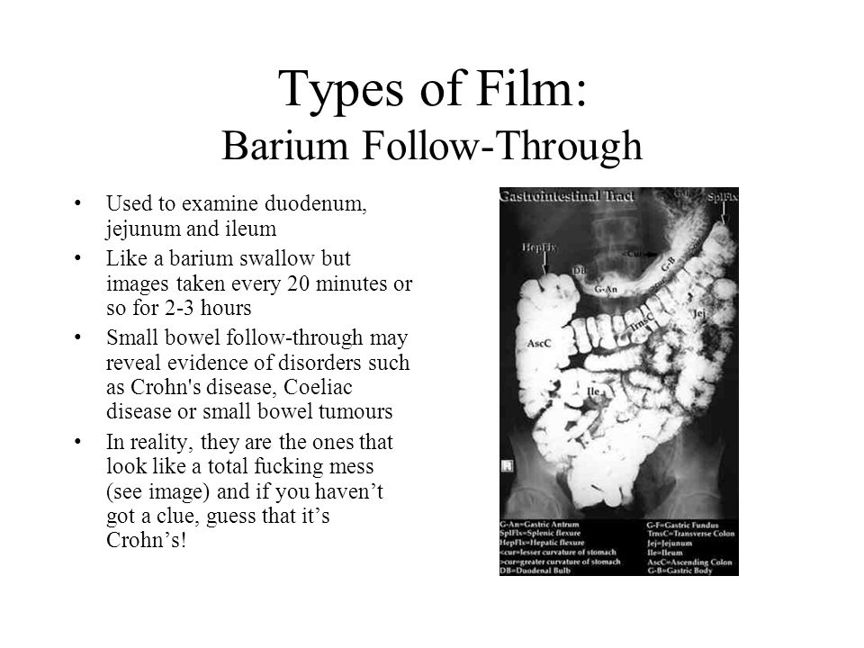 Types of Film: Barium Follow-Through Used to examine duodenum, jejunum and ileum Like a barium swallow but images taken every 20 minutes or so for 2-3 hours Small bowel follow-through may reveal evidence of disorders such as Crohn s disease, Coeliac disease or small bowel tumours In reality, they are the ones that look like a total fucking mess (see image) and if you haven't got a clue, guess that it's Crohn's!