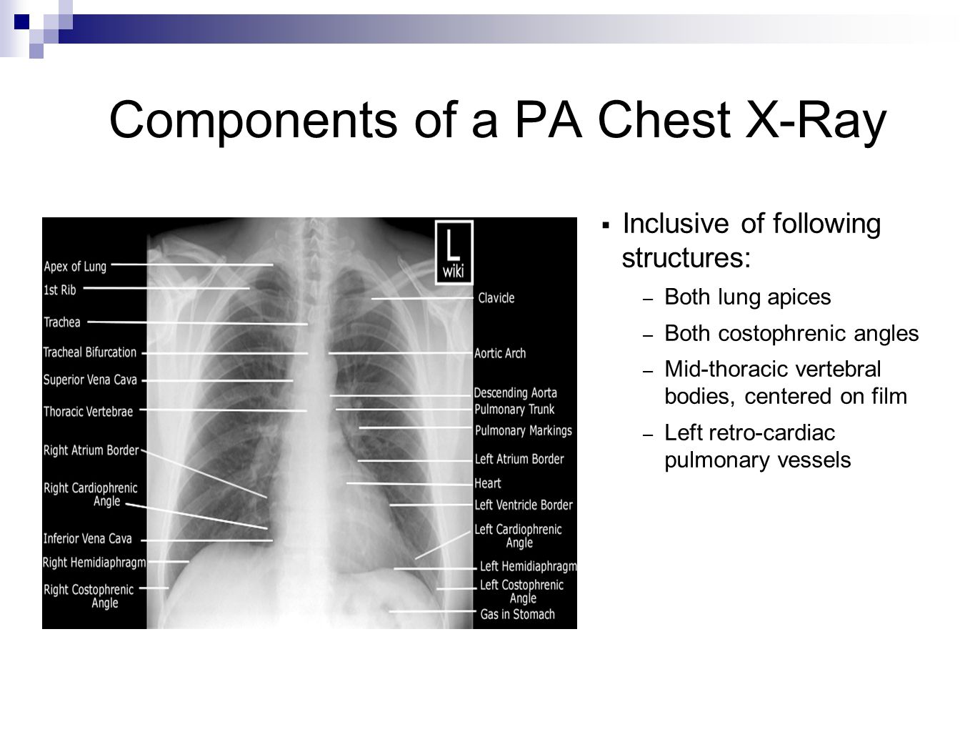 Lateral Decubitus  Assess volume of pleural effusion  Determine if effusion is mobile or loculated http://www.med-ed.virginia.edu/courses/rad/cxr/technique4chest.html