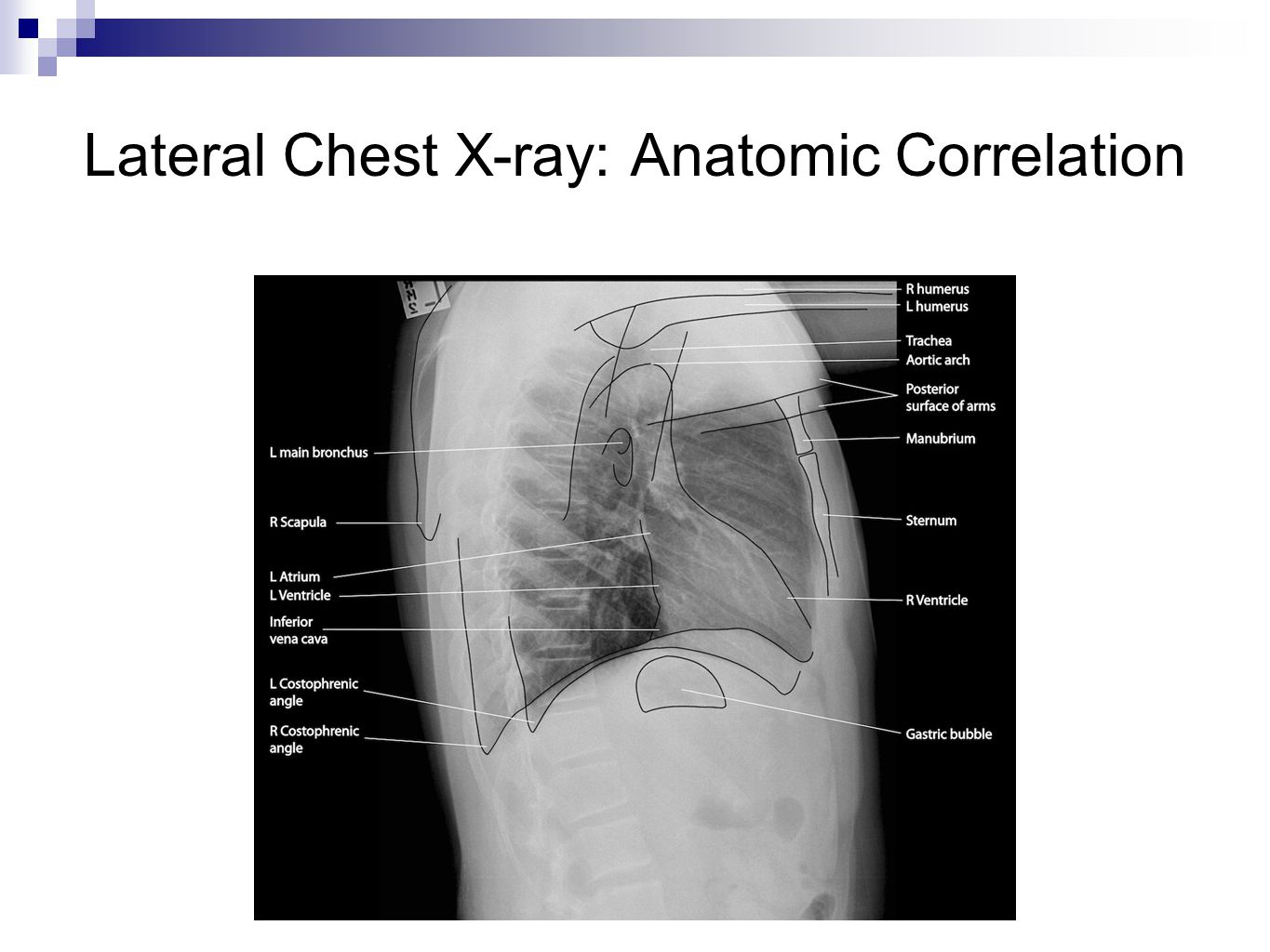 Approach to Interpretation of Chest X-ray: Top to Bottom AAirway:  Evaluate Trachea and thoracic inlet (should be centrally located) LLungs:  Look at expansion and inspiratory effort (should be able to count 11 ribs)  Look for opacities, consolidation, fissures, fluid, air bronchograms  Compare the right and left lung HHeart and Large Vessels:  Evaluate heart size and shape  Evaluate the location and prominence of vessels DDiaphragm:  Look at elevation bilaterally  Evaluate for free air underneath BBones:  Look for fractures and deformities  Evaluate bone density UUpper Abdomen:  Look for stomach bubble  Evaluate liver size