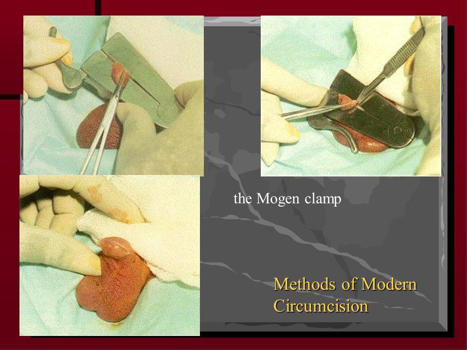 the Mogen clamp Methods of Modern Circumcision