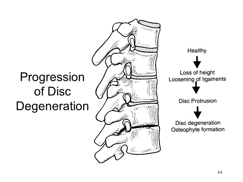 44 Progression of Disc Degeneration