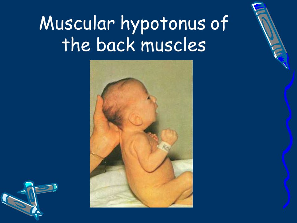 Muscular hypotonus of the back muscles
