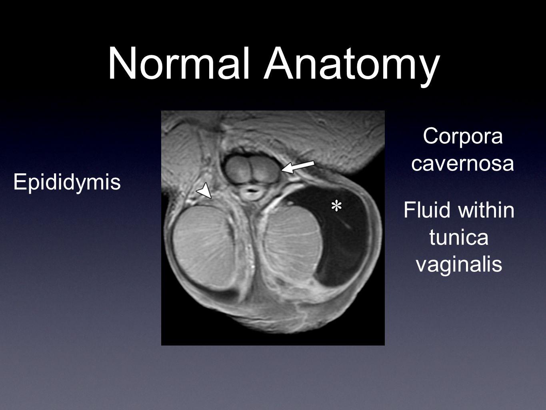 Normal Anatomy Corpora cavernosa Epididymis Fluid within tunica vaginalis