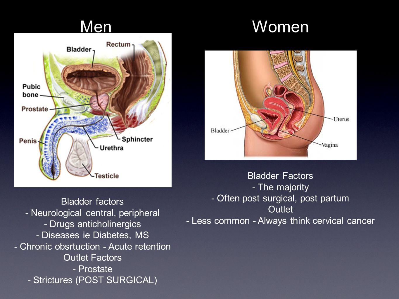 Men Bladder factors - Neurological central, peripheral - Drugs anticholinergics - Diseases ie Diabetes, MS - Chronic obsrtuction - Acute retention Outlet Factors - Prostate - Strictures (POST SURGICAL) Women Bladder Factors - The majority - Often post surgical, post partum Outlet - Less common - Always think cervical cancer