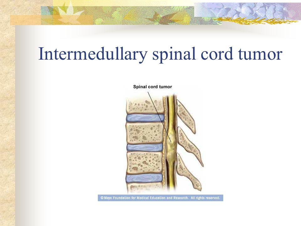 Intermedullary spinal cord tumor