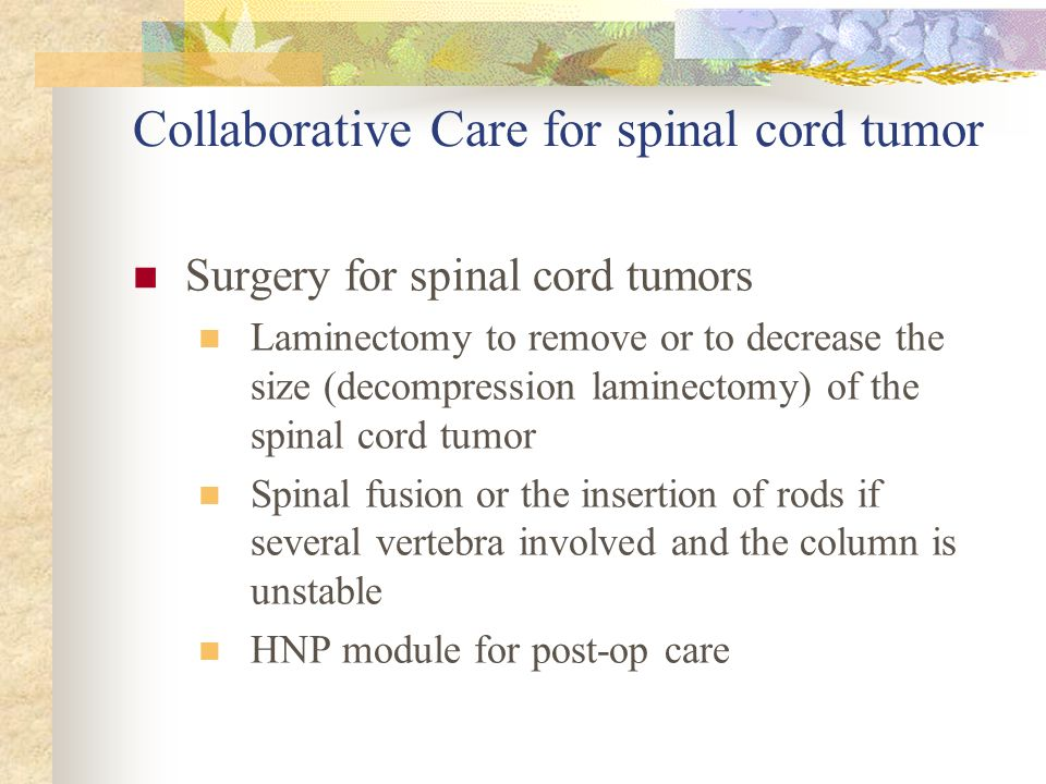 Collaborative Care for spinal cord tumor Surgery for spinal cord tumors Laminectomy to remove or to decrease the size (decompression laminectomy) of t