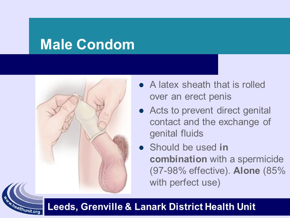 Leeds, Grenville & Lanark District Health Unit Male Condom (cont'd) Advantages – They are your BEST protection against STI's – Easily accessible and inexpensive – Do not need prescription – No hormonal changes – May help to avoid premature ejaculation Disadvantages – Reduced sensitivity – Must be stored & handled properly (expiry date) – Can slip off or break – Latex allergies – Should be used with a spermicide for better protection