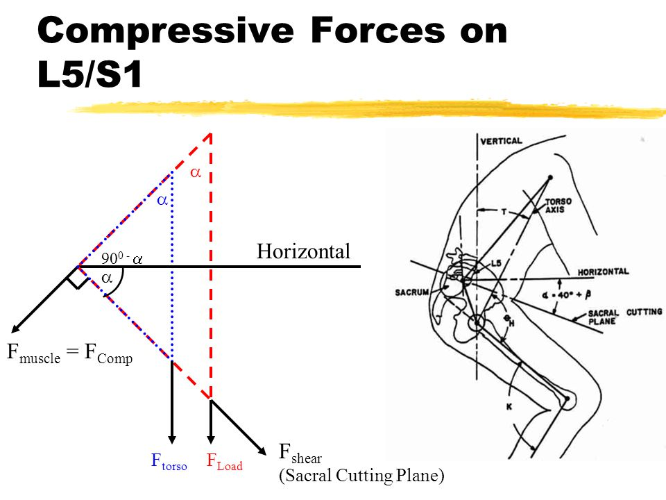 Horizontal F torso F muscle = F Comp  F shear (Sacral Cutting Plane)  90 0 -   F Load