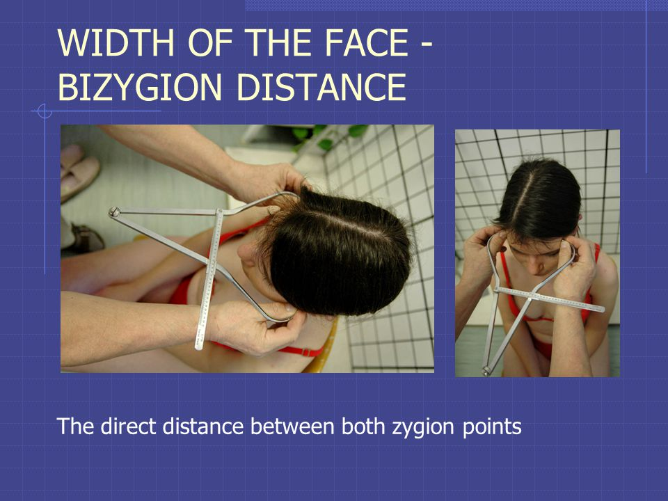 WIDTH OF THE FACE - BIZYGION DISTANCE The direct distance between both zygion points