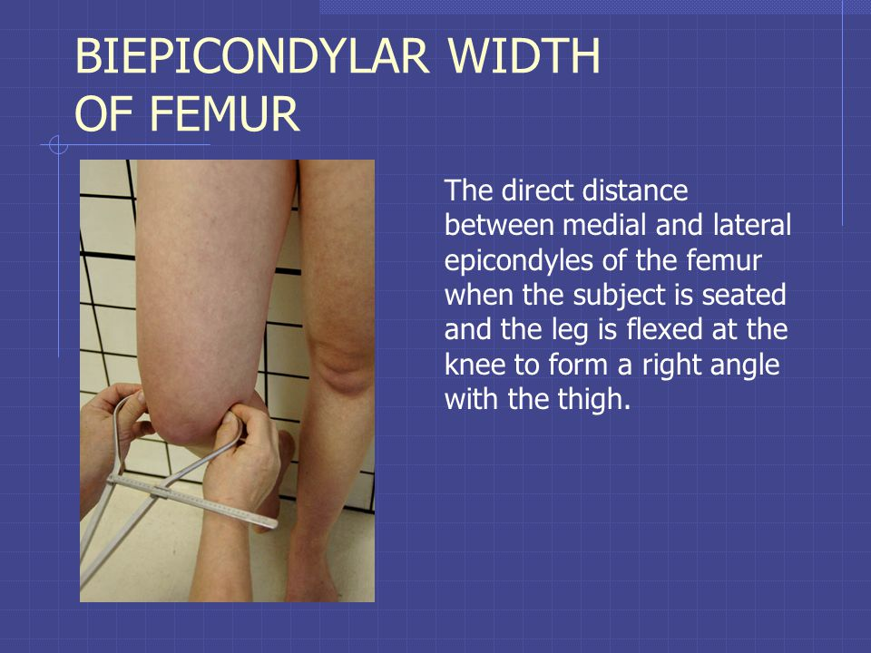 BIEPICONDYLAR WIDTH OF FEMUR The direct distance between medial and lateral epicondyles of the femur when the subject is seated and the leg is flexed at the knee to form a right angle with the thigh.
