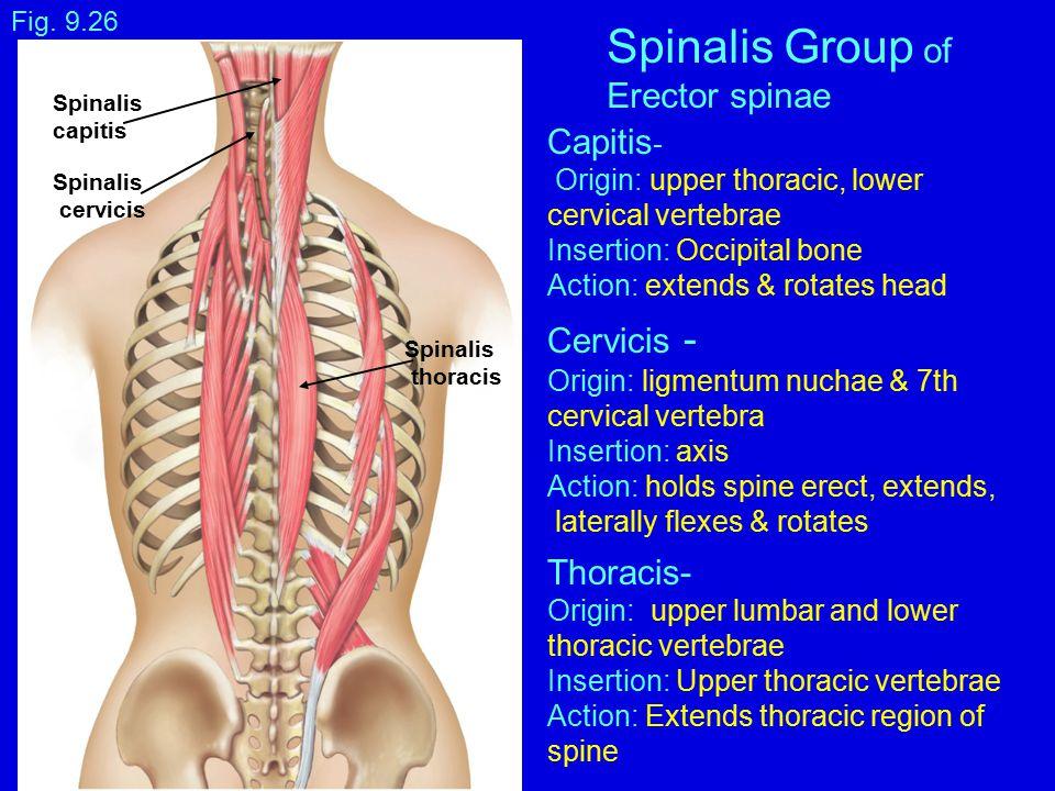 Fig. 9.26 Capitis - Origin: upper thoracic, lower cervical vertebrae Insertion: Occipital bone Action: extends & rotates head Cervicis - Origin: ligme