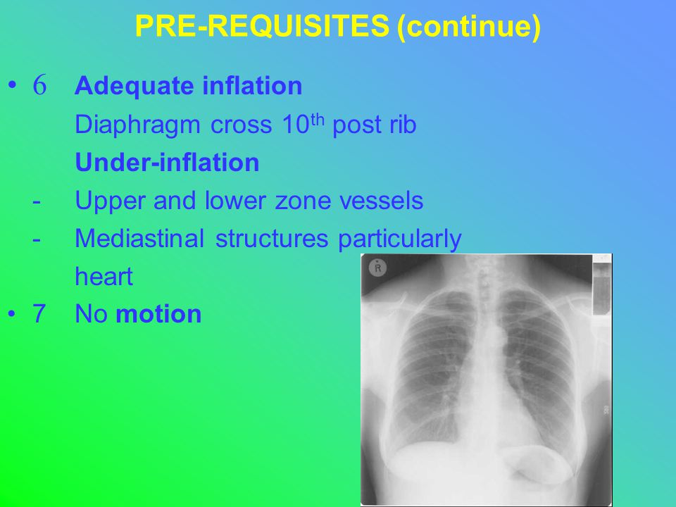 PRE-REQUISITES (continue) 6 Adequate inflation Diaphragm cross 10 th post rib Under-inflation -Upper and lower zone vessels -Mediastinal structures particularly heart 7No motion