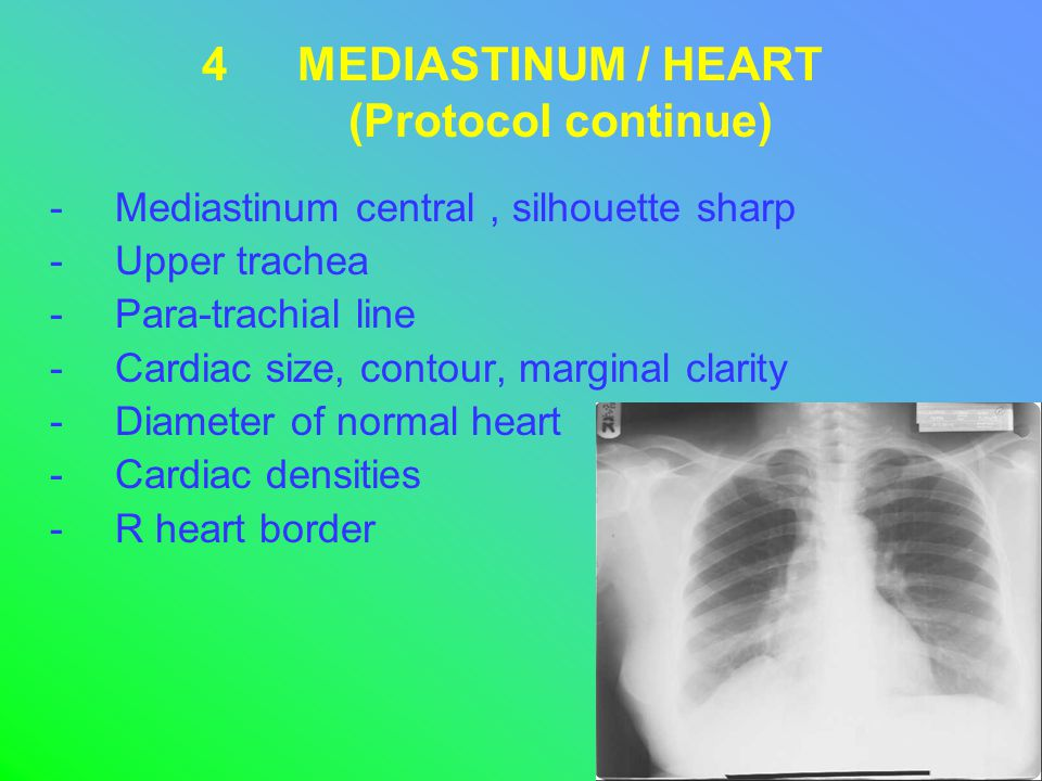 4MEDIASTINUM / HEART (Protocol continue) -Mediastinum central, silhouette sharp -Upper trachea -Para-trachial line -Cardiac size, contour, marginal clarity -Diameter of normal heart -Cardiac densities -R heart border