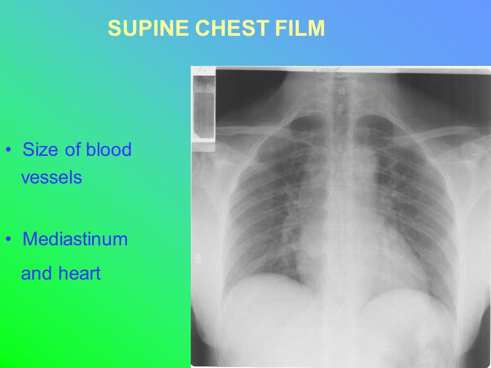 Size of blood vessels Mediastinum and heart SUPINE CHEST FILM