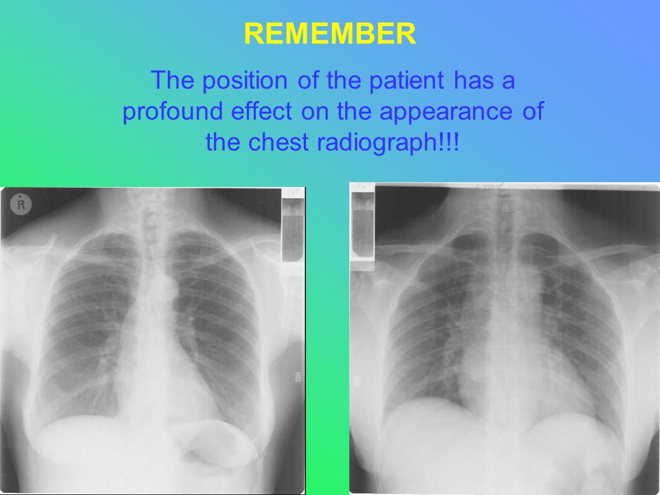 REMEMBER The position of the patient has a profound effect on the appearance of the chest radiograph!!!