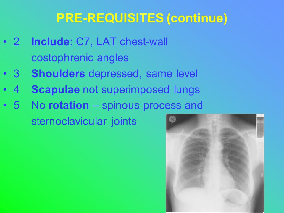 PRE-REQUISITES (continue) 2Include: C7, LAT chest-wall costophrenic angles 3Shoulders depressed, same level 4Scapulae not superimposed lungs 5No rotation – spinous process and sternoclavicular joints