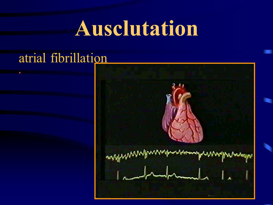 45 Ausclutation atrial fibrillation