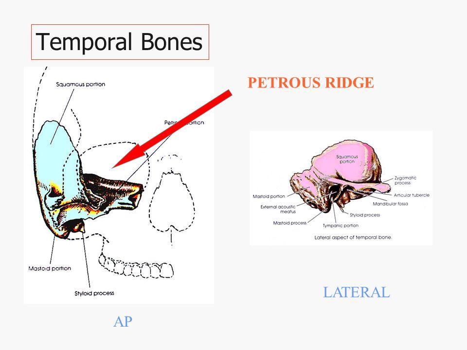Temporal Bones LATERAL AP PETROUS RIDGE