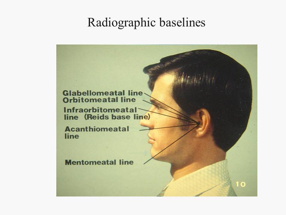 Radiographic baselines