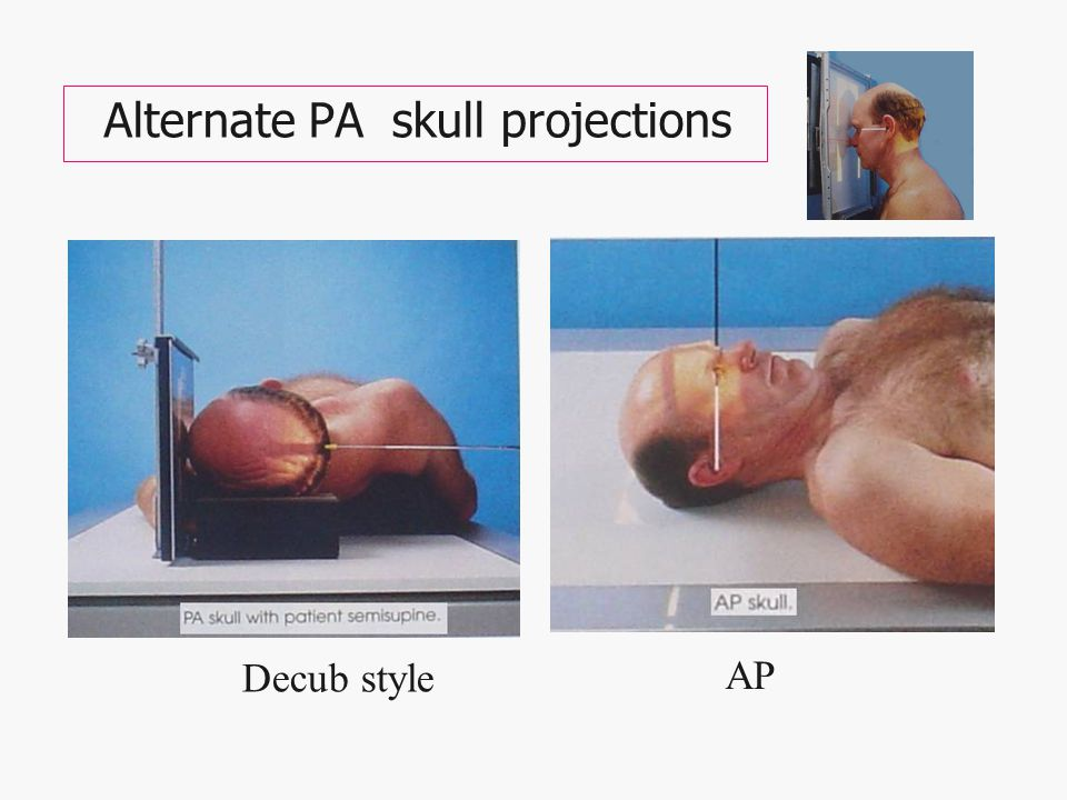 Alternate PA skull projections Decub style AP