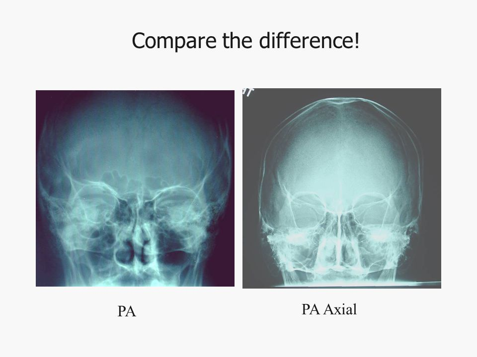 Compare the difference! PA PA Axial