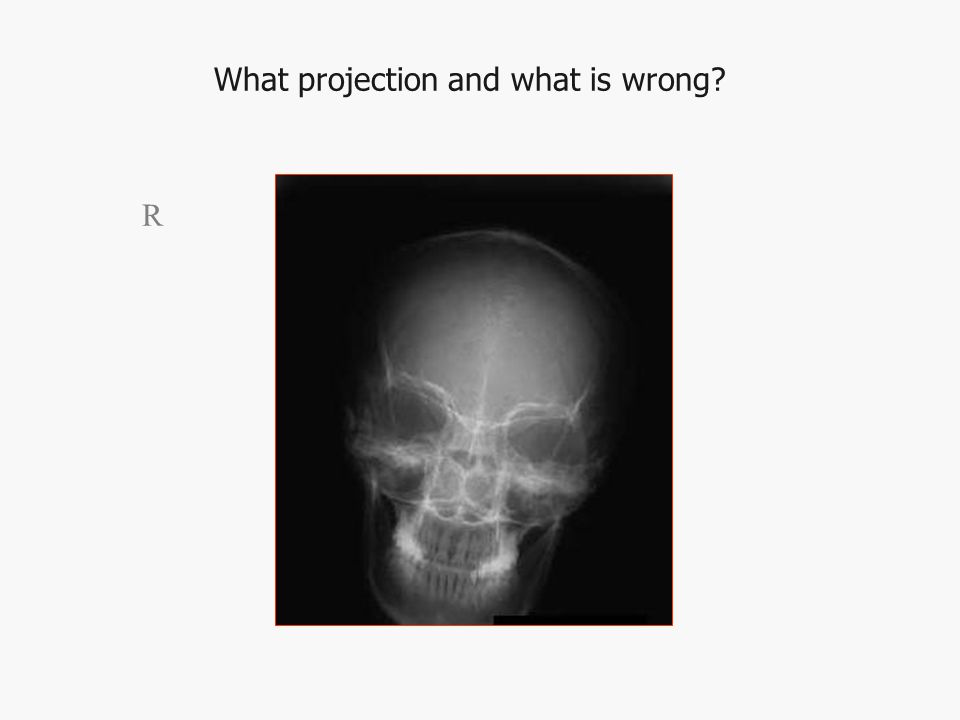 What projection and what is wrong R