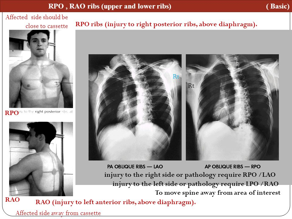 RPO, RAO ribs (upper and lower ribs) ( Basic) RPO ribs (injury to right posterior ribs, above diaphragm). RAO (injury to left anterior ribs, above dia