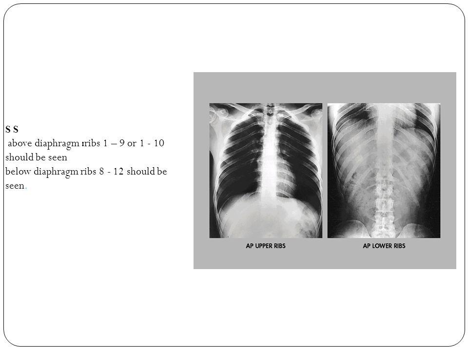 AP ACROMIOCLAVICULAR JOINTS (ACJs) ( Basic) Film Size: 14x17 in.