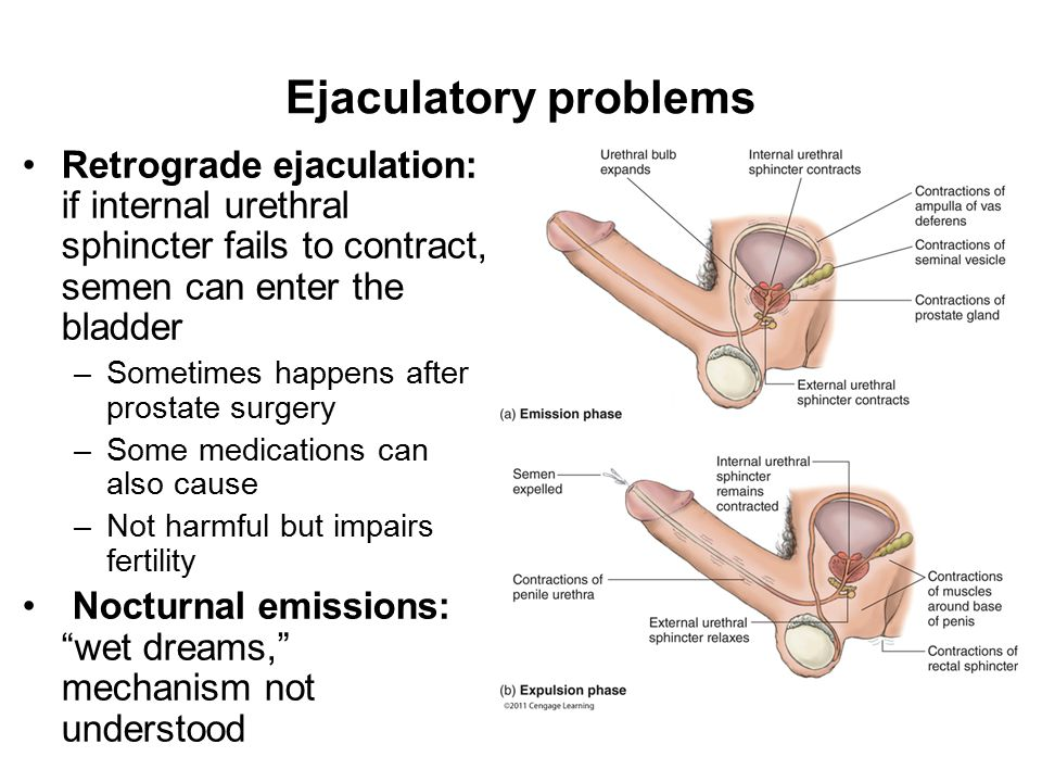 Ejaculatory problems Retrograde ejaculation: if internal urethral sphincter fails to contract, semen can enter the bladder –Sometimes happens after prostate surgery –Some medications can also cause –Not harmful but impairs fertility Nocturnal emissions: wet dreams, mechanism not understood