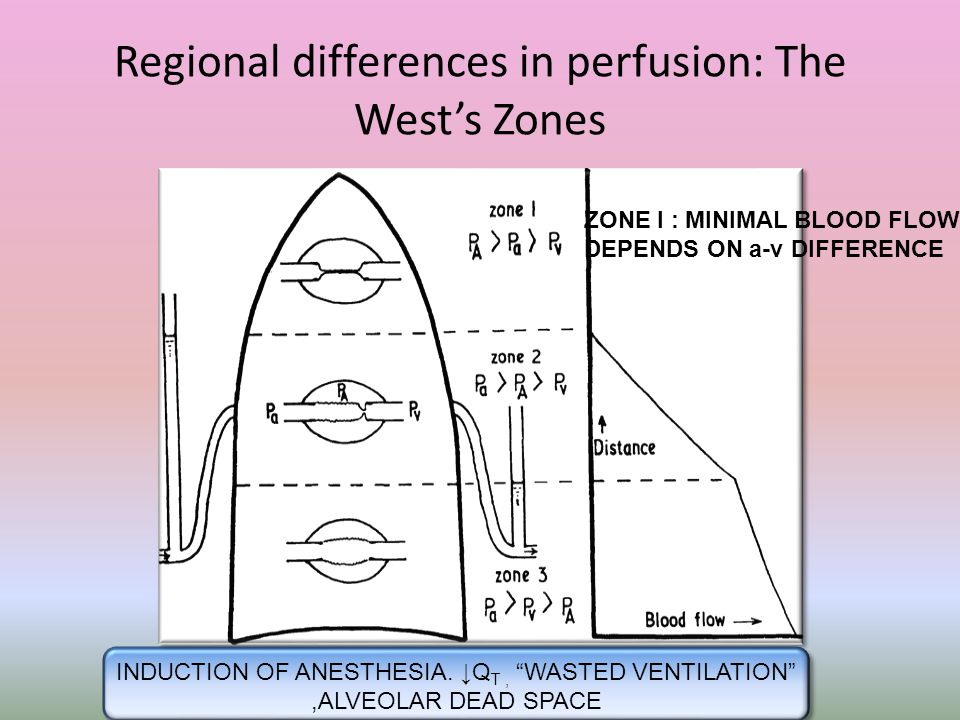 """Regional differences in perfusion: The West's Zones ZONE I : MINIMAL BLOOD FLOW DEPENDS ON a-v DIFFERENCE INDUCTION OF ANESTHESIA. ↓Q T, """"WASTED VENTI"""