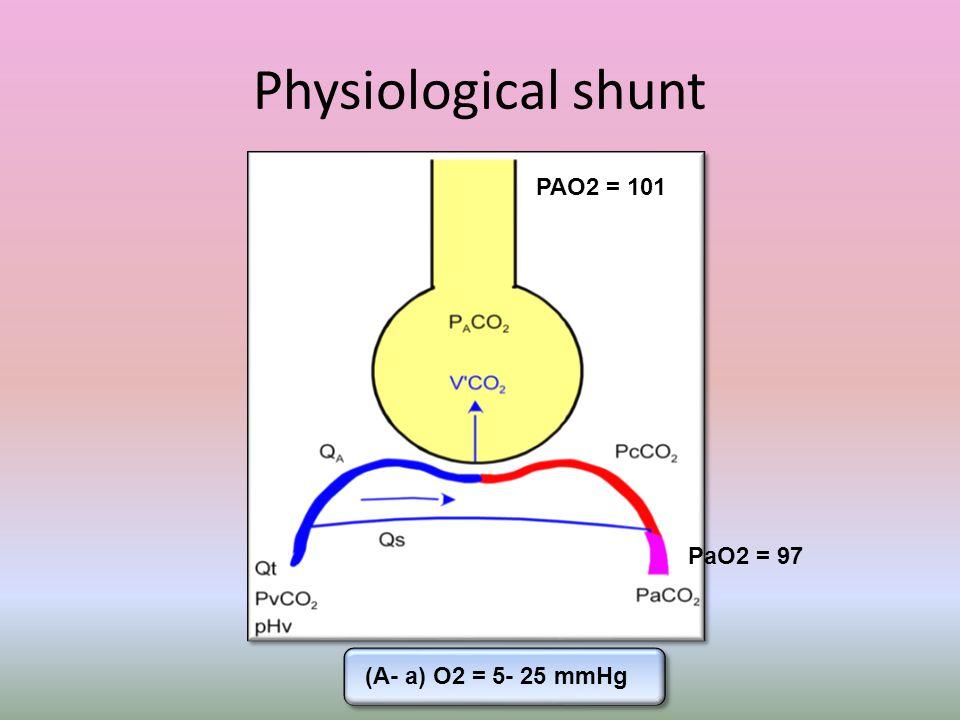 Physiological shunt PAO2 = 101 PaO2 = 97 (A- a) O2 = 5- 25 mmHg