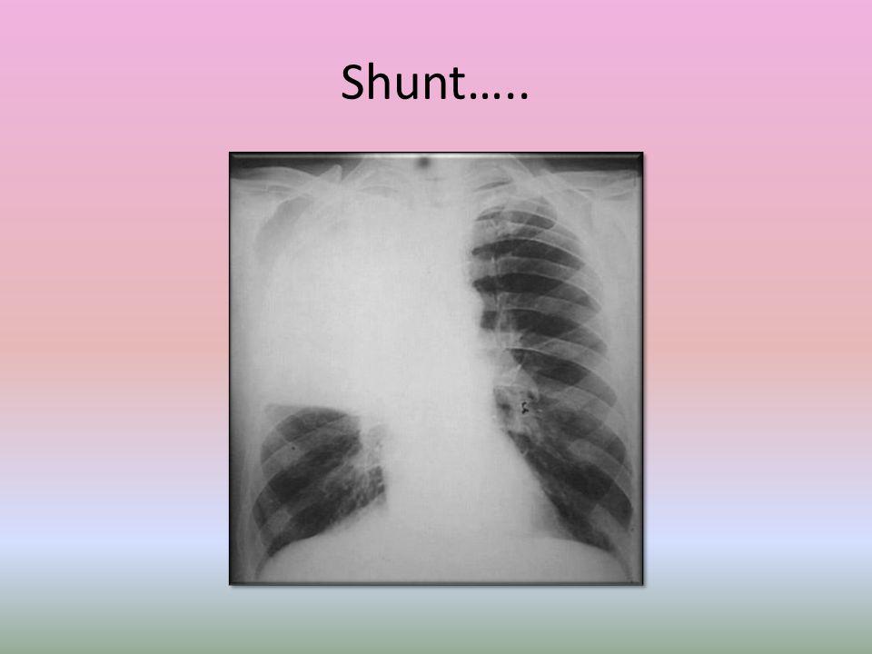 Shunt…..