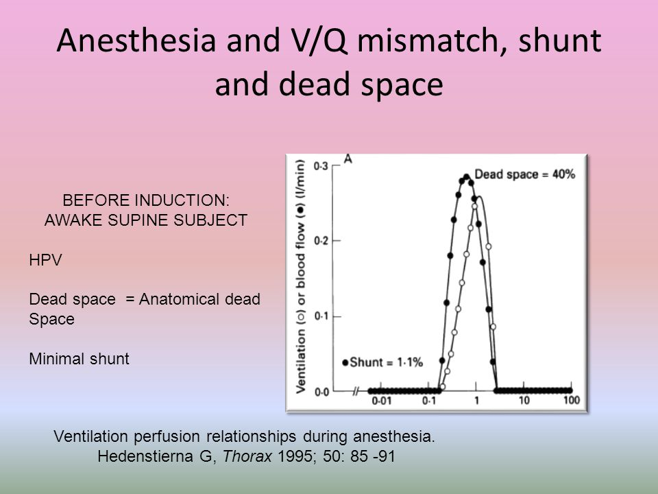 Anesthesia and V/Q mismatch, shunt and dead space BEFORE INDUCTION: AWAKE SUPINE SUBJECT HPV Dead space = Anatomical dead Space Minimal shunt Ventilat