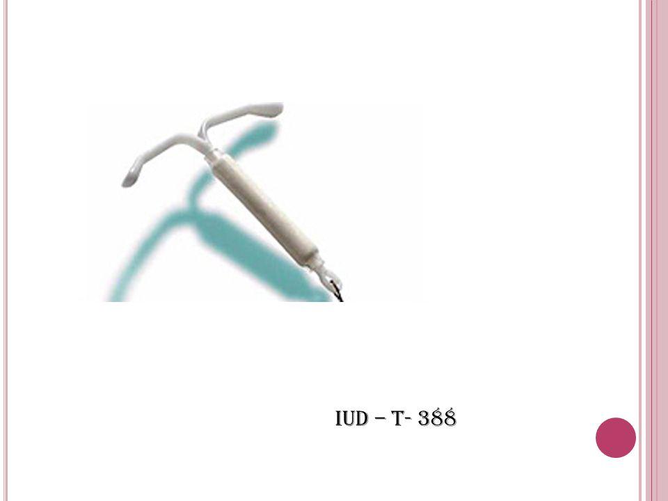 IUD – T- 388