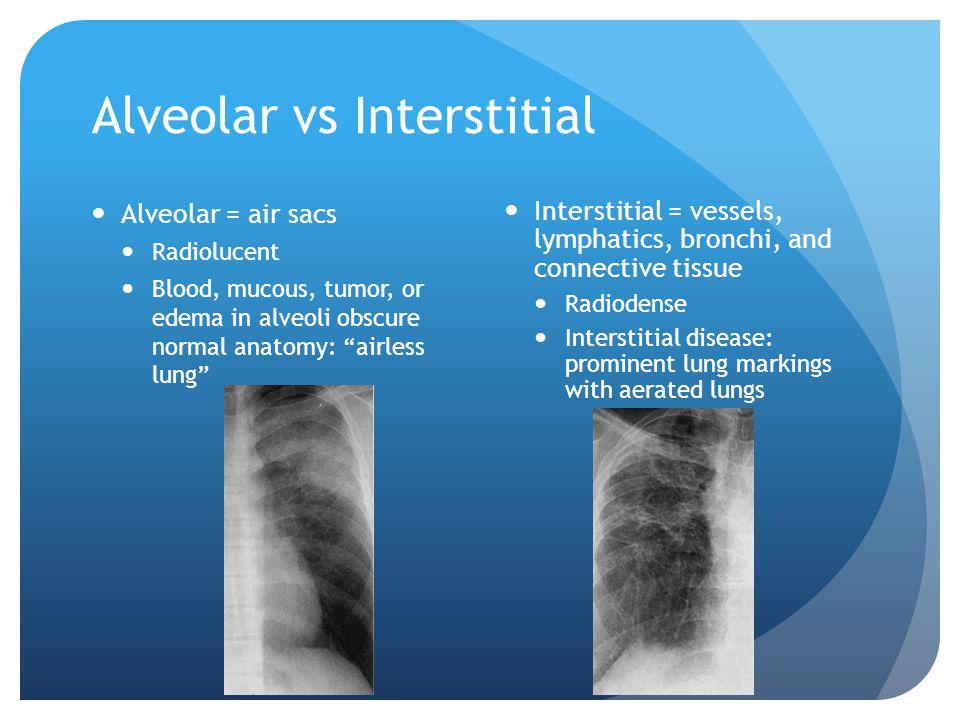 "Alveolar vs Interstitial Alveolar = air sacs Radiolucent Blood, mucous, tumor, or edema in alveoli obscure normal anatomy: ""airless lung"" Interstitial"