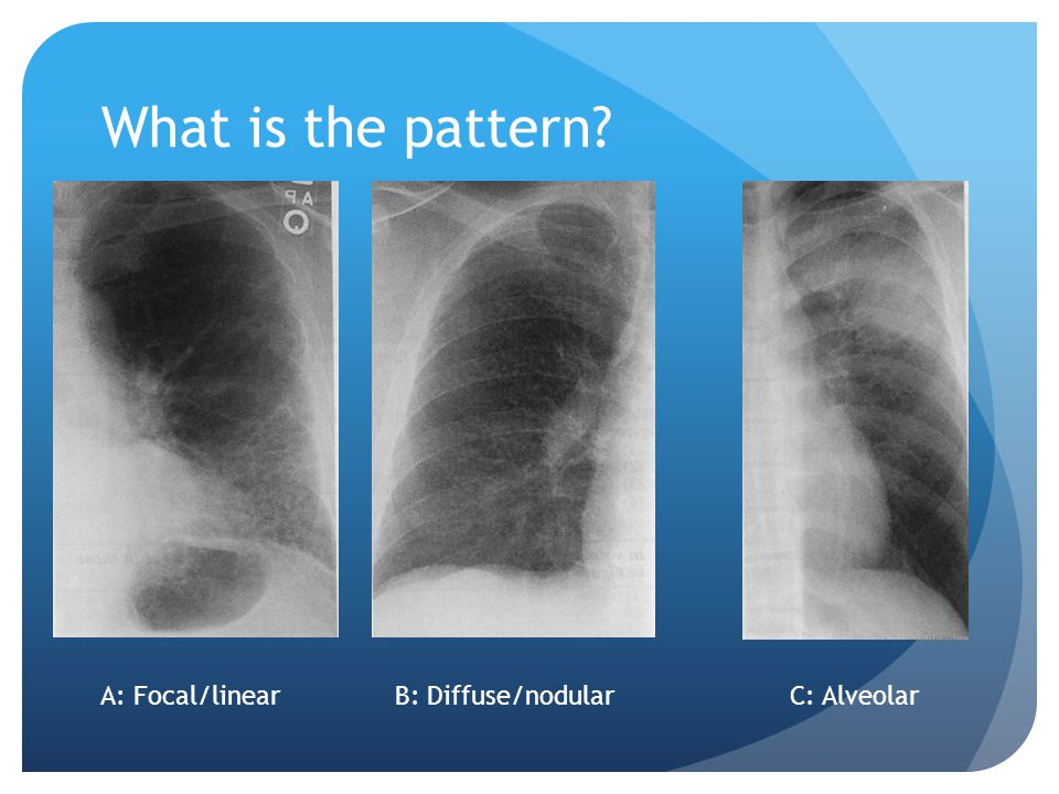What is the pattern? A: Focal/linearB: Diffuse/nodularC: Alveolar