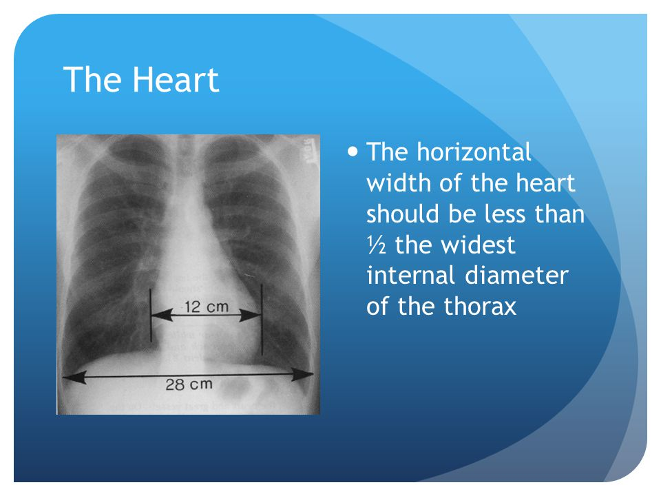 The Heart The horizontal width of the heart should be less than ½ the widest internal diameter of the thorax