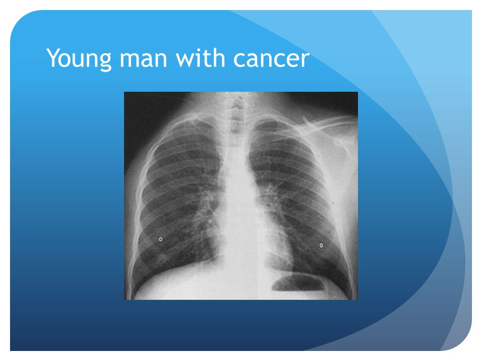 Young man with cancer