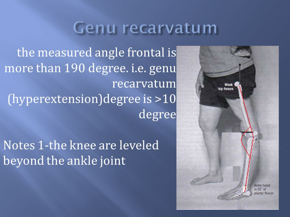 the measured angle frontal is more than 190 degree. i.e. genu recarvatum (hyperextension)degree is >10 degree Notes 1-the knee are leveled beyond the
