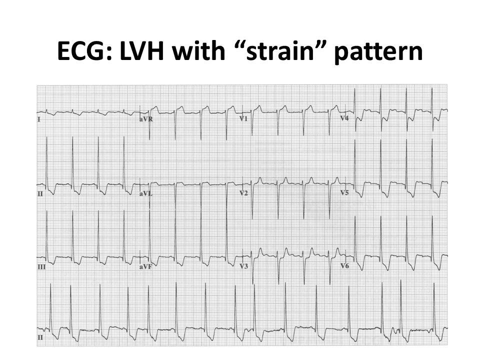 ECG: LVH with strain pattern