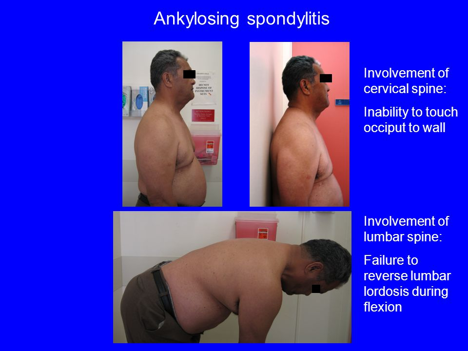 Ankylosing spondylitis Involvement of cervical spine: Inability to touch occiput to wall Involvement of lumbar spine: Failure to reverse lumbar lordos