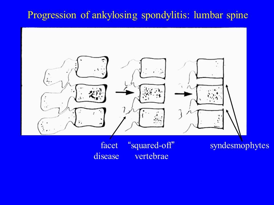 "Progression of ankylosing spondylitis: lumbar spine facet "" squared-off "" syndesmophytes disease vertebrae"