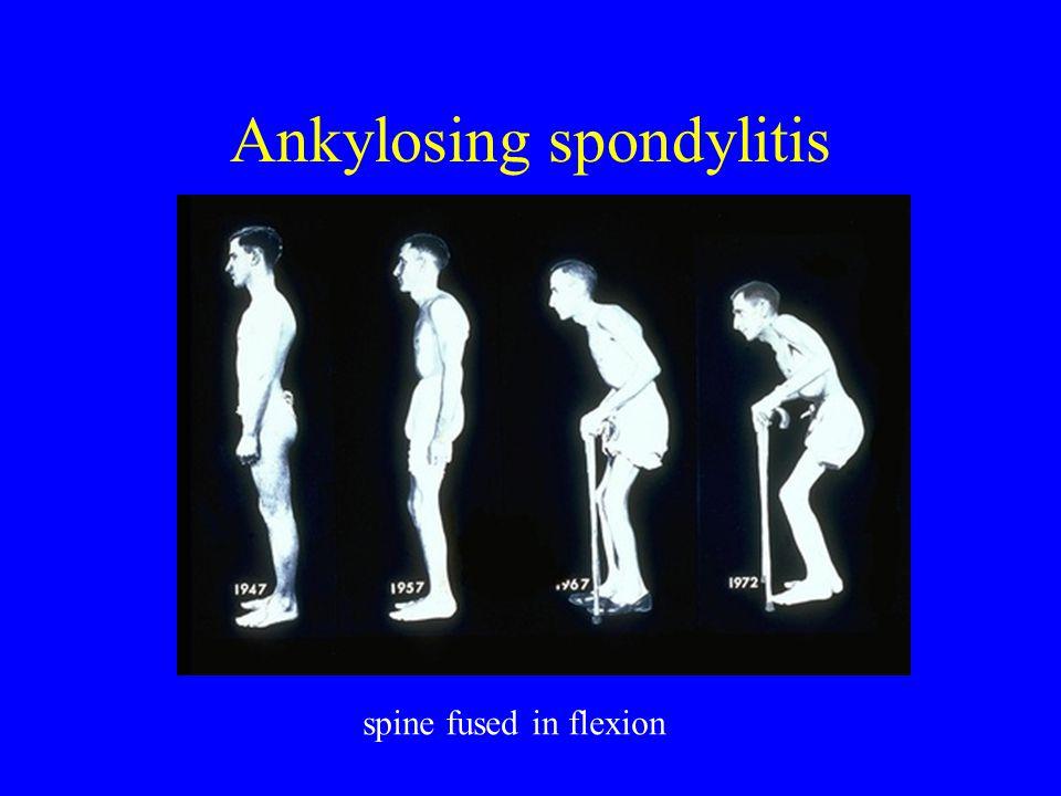 Ankylosing spondylitis spine fused in flexion
