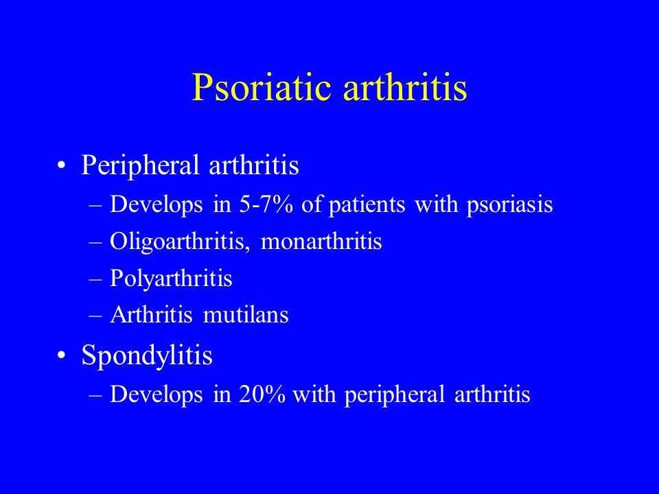 Psoriatic arthritis Peripheral arthritis –Develops in 5-7% of patients with psoriasis –Oligoarthritis, monarthritis –Polyarthritis –Arthritis mutilans