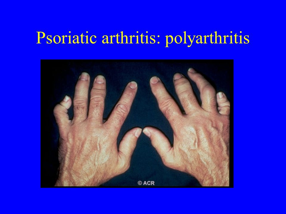 Psoriatic arthritis: polyarthritis