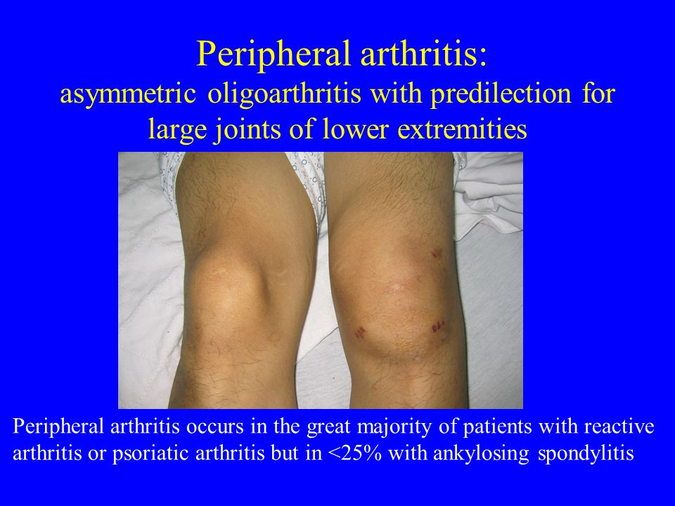 Reactive arthritis arthritis triggered by GU or GI infections in which the inciting organism cannot be cultured from involved joints genitourinary infections: - Chlamydia trachomatis enteric infections: - Shigella - Salmonella - Yersinia - Campylobacter