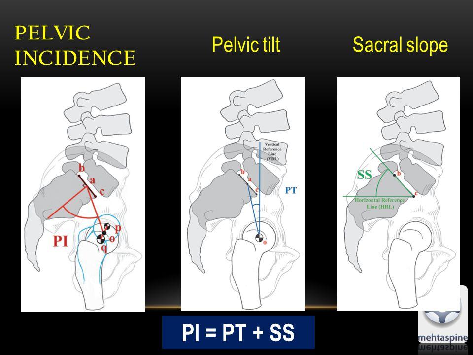 PELVIC INCIDENCE Pelvic tiltSacral slope PI = PT + SS