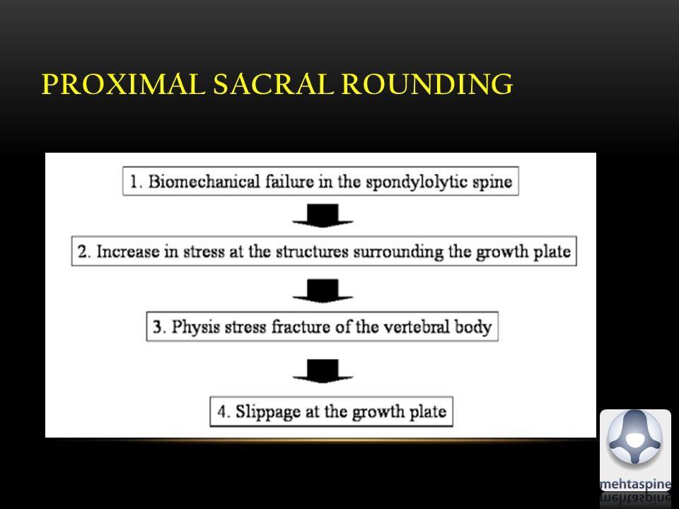 PROXIMAL SACRAL ROUNDING